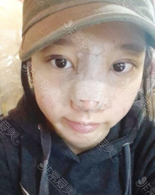 韩国纯真医院眼鼻手术术后照片
