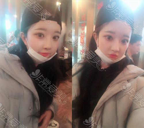 韩国纯真整形医院眼鼻手术术后恢复效果