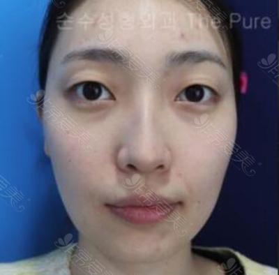 眼鼻综合手术术前效果
