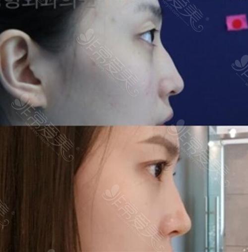 韩国纯真眼鼻整形前后对比