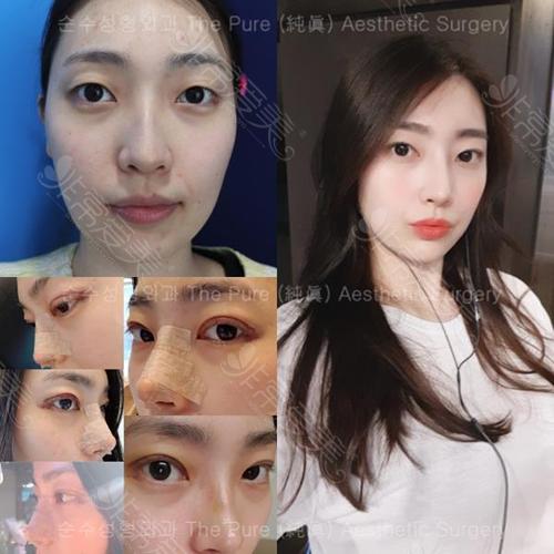韩国纯真整形医院眼部整形前后照片
