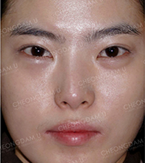 韩国清潭优鼻部手术案例
