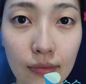 韩国纯真整形术前案例照片