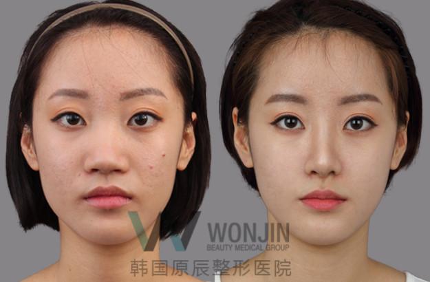 在韩国整鼻子多少钱_鼻翼缩小对比图效果什么样,多少钱能做下来?-非常爱美