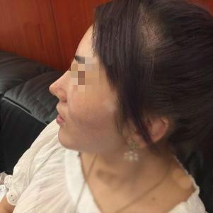 混血鼻整形失败案例