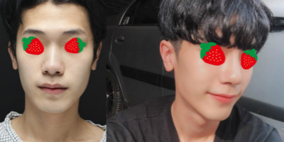 韩国丽丝塔男士鼻整形案例对比