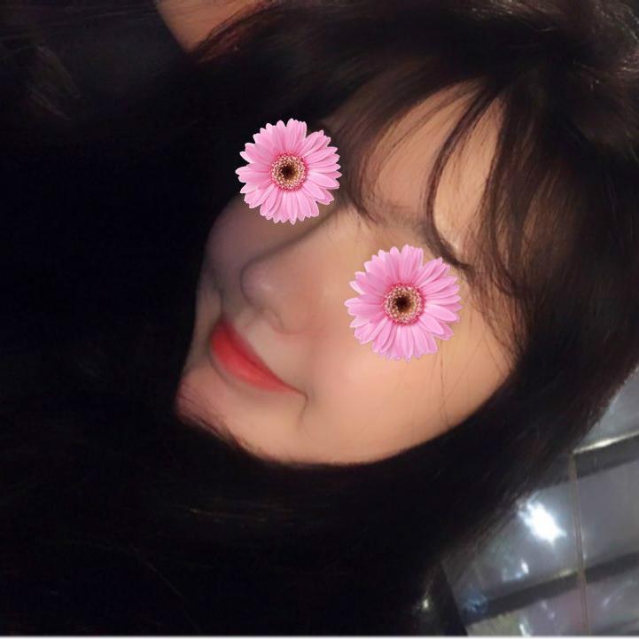 韩国丽丝塔鼻整形案例