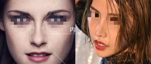 韩国丽丝塔欧美风鼻整形案例