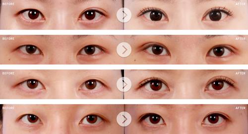 oblige整形外科郑宰昊院长双眼皮案例对比