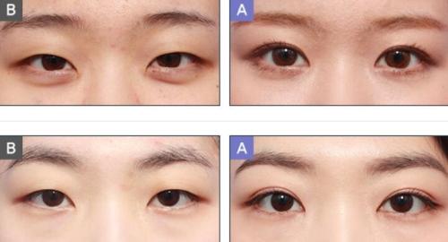 韩国MOTIVE眼部整形前后对比照片
