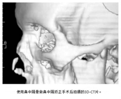 歪鼻矫正术后ct展示