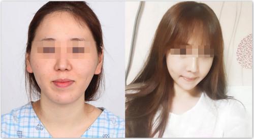 韩国菲斯莱茵颧骨+v-line手术