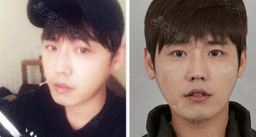 韩国ID整形医院男士轮廓整形术前照片