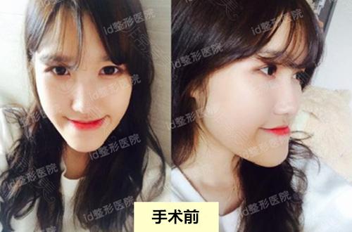 韩国ID地包天整形手术术前照片
