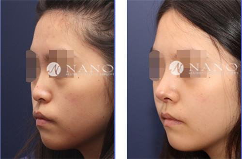 韩国nano整形医院隆鼻手术案例对比图