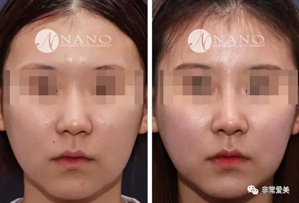 韩国nano整形医院隆鼻手术案例前后对比