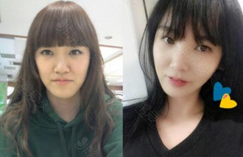 韩国ID整形医院地包天手术前后对比照片
