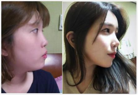 肋软骨隆鼻案例