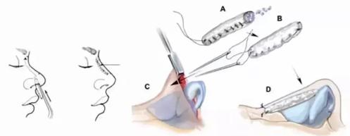 韩国肋软骨隆鼻手术特点