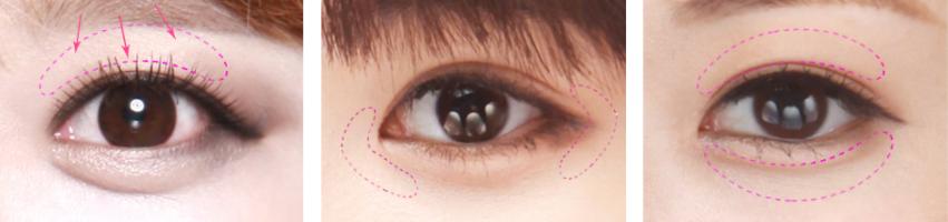眼综合整形是什么