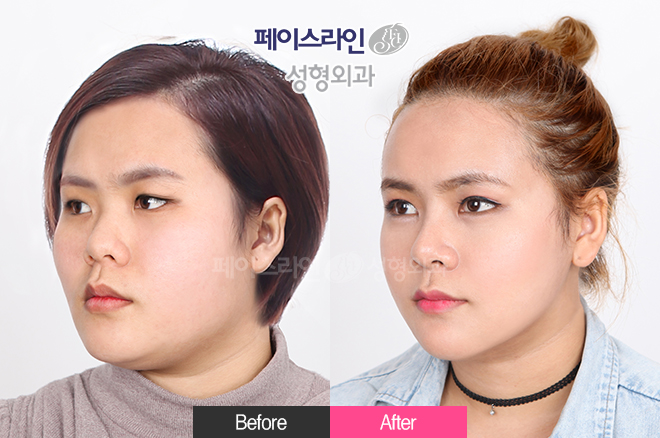 韩国菲斯莱茵眼鼻综合整形案例