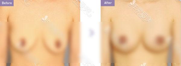 乳房轻度下垂案例图