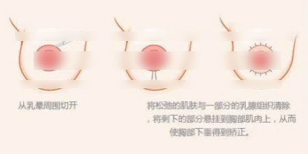 乳房下垂手术示意图