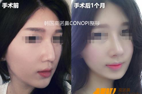 韩国高诺鼻整形医院手术对比