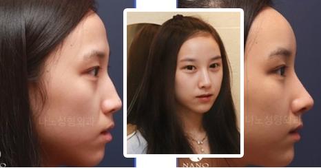 韩国首尔的整形医院鼻整形好吗?