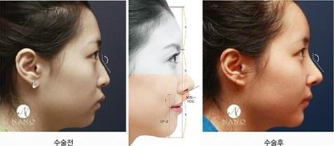 nano鼻整形案例效果