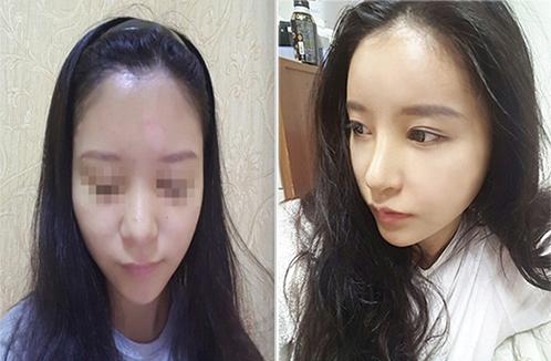 韩国koko鼻整形手术对比案例