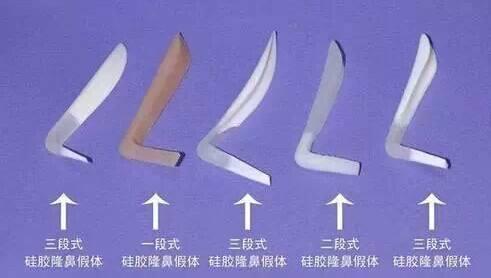 隆鼻硅胶假体照片
