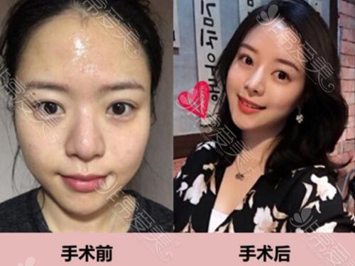 韩国ID医院假体隆鼻前后对比照片