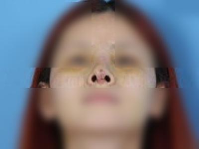 假体隆鼻术后出现感染照片