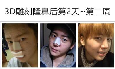 3D雕刻隆鼻术后图片