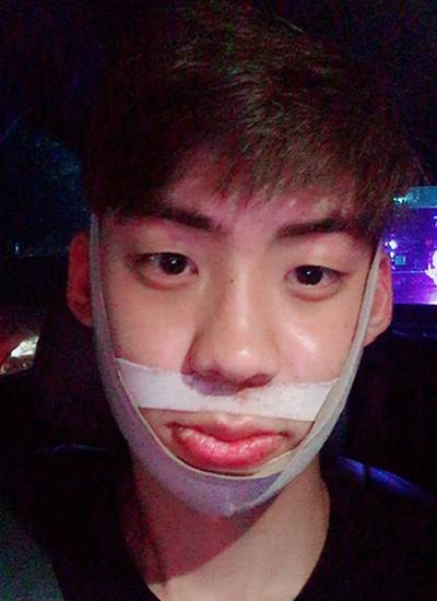 面部不对称矫正手术恢复期照片