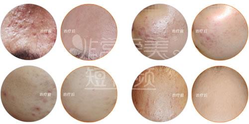 韩国童颜祛痘案例对比