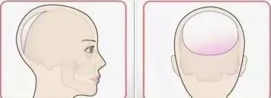 后脑勺整形手术安全吗