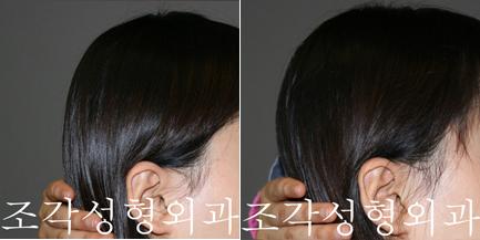 韩国雕刻医院后脑勺填充手术对比案例