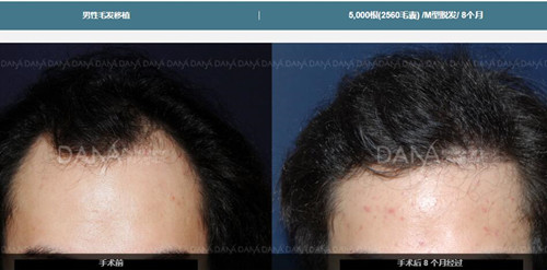 韩国多娜M型脱发移植真人案例对比
