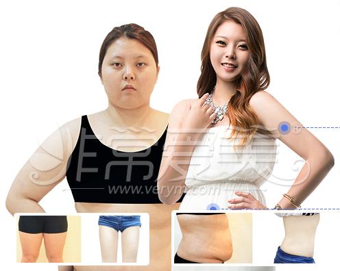 韩国丽颖医院吸脂手术后遗症