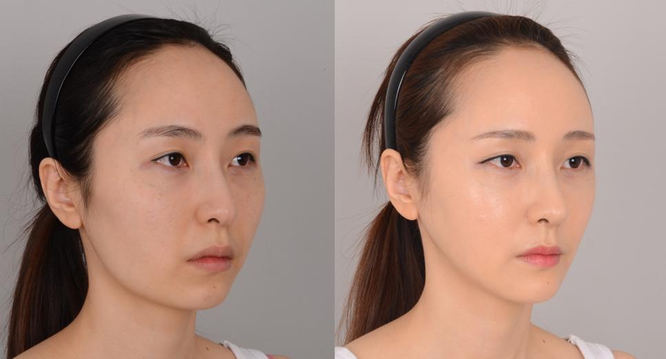 韓國JJ洪鎮柱整形外科輪廓整形案例