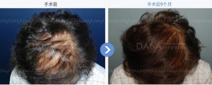 韩国多娜整形外科植发案例
