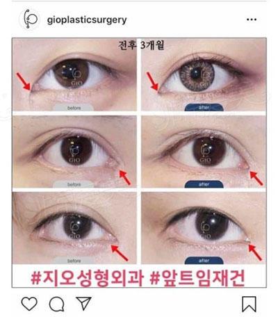 韩国gio眼角修复案例图