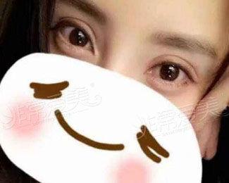 韩国gio整形医院双眼皮案例图