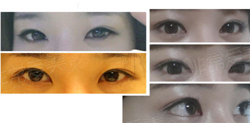 韩国gio整形医院双眼皮+开眼角案例图