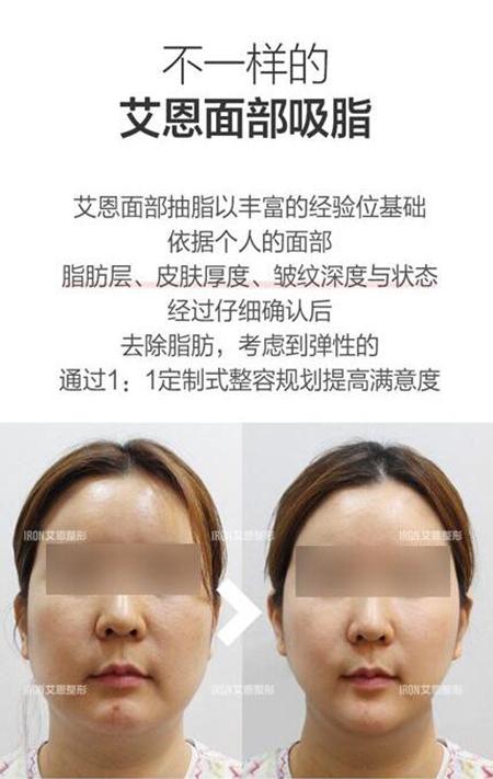 韩国艾恩医院面部吸脂照片