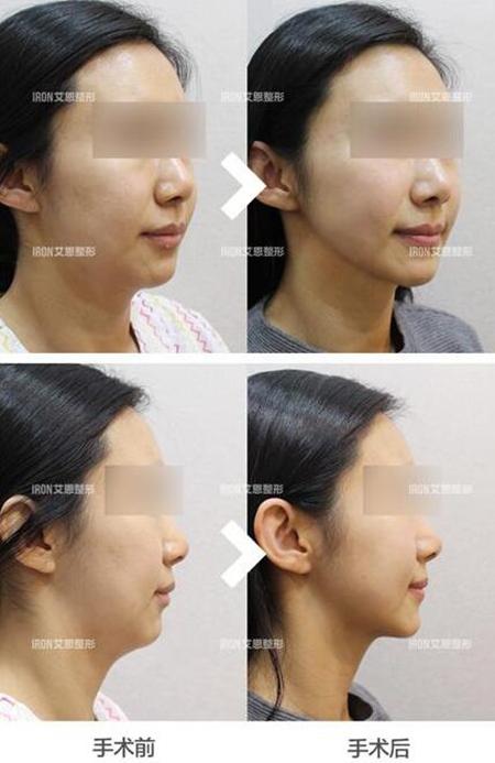 韩国艾恩医院面部吸脂对比照片