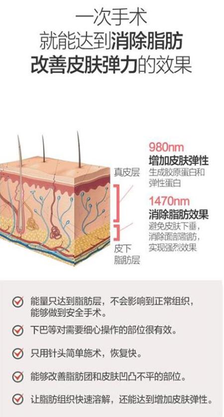 韩国艾恩医院面部吸脂优势照片