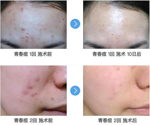 韩国林二石整形外科痘肌治疗案例
